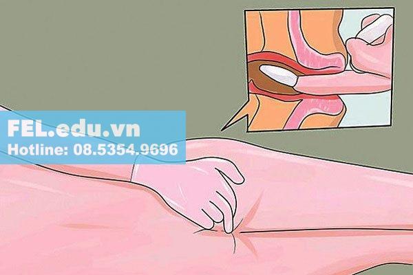 Sử dụng các phương pháp kết hợp với thuốc đặt hậu môn