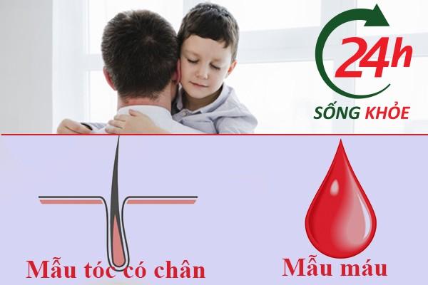 Sử dụng mẫu máu xét nghiệm ADN chính xác nhất