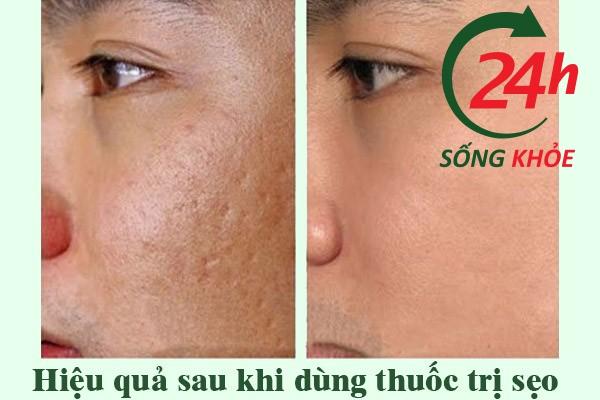 Trước và sau khi dùng thuốc trị sẹo Scar Esthique