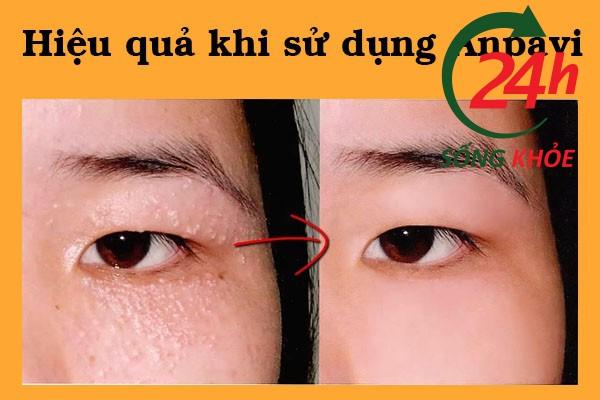 Hình ảnh trước và sau khi sử dụng Anpavi