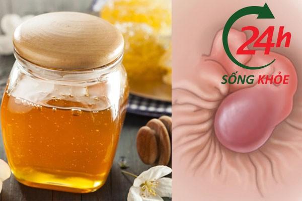 Bôi mật ong trực tiếp vào búi trĩ