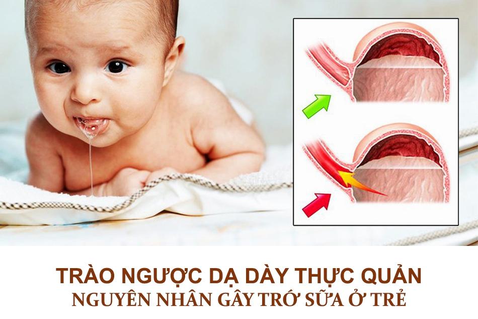 Nguyên nhân trẻ sơ sinh bị trớ sữa