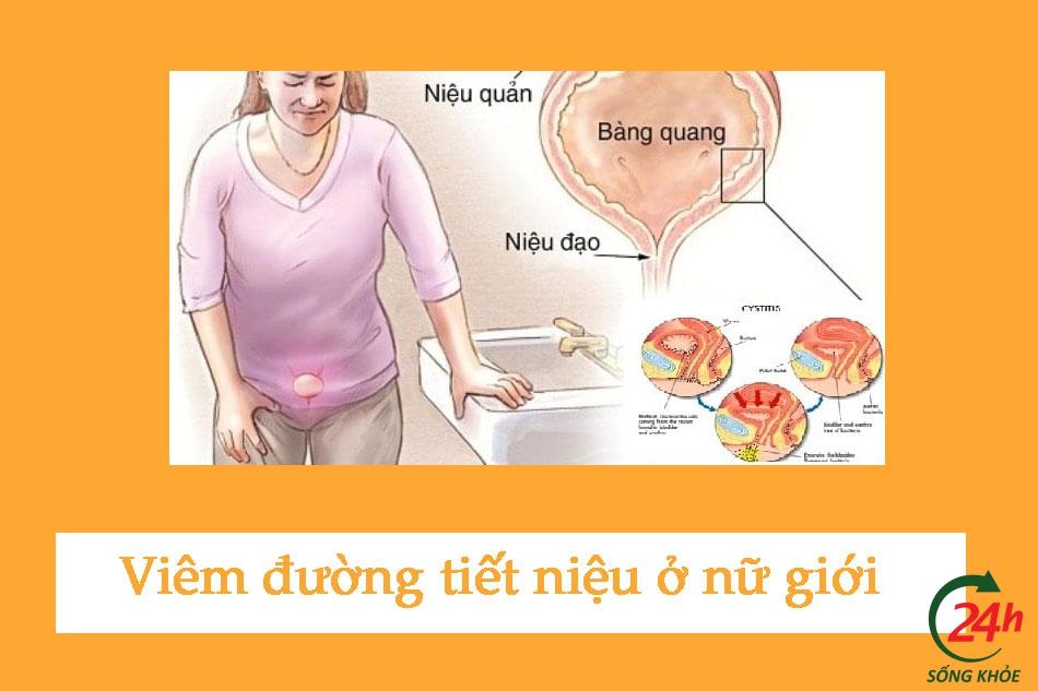 Hình ảnh viêm đường tiết niệu ở nữ giới