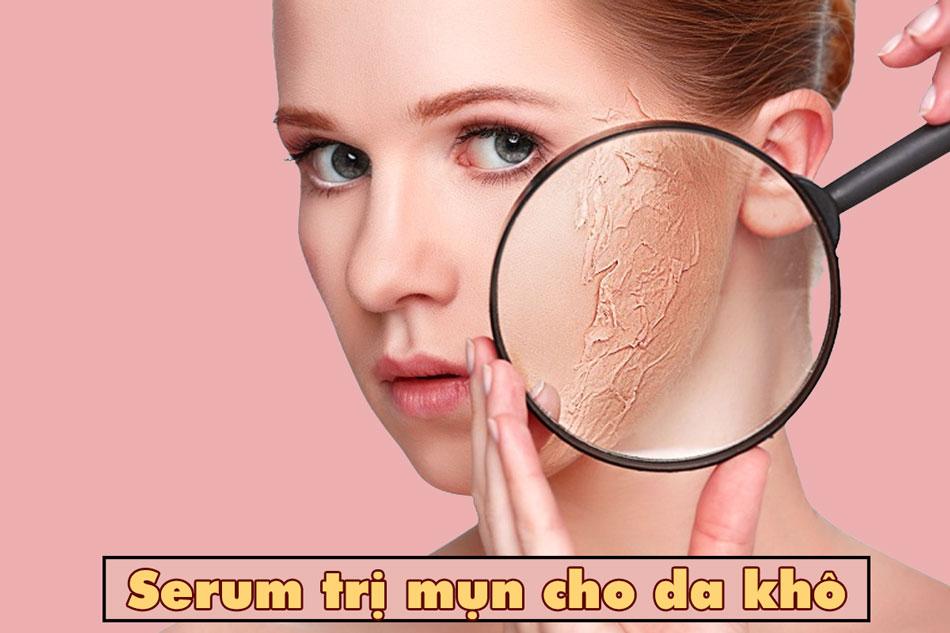 serum trị mụn cho da khô