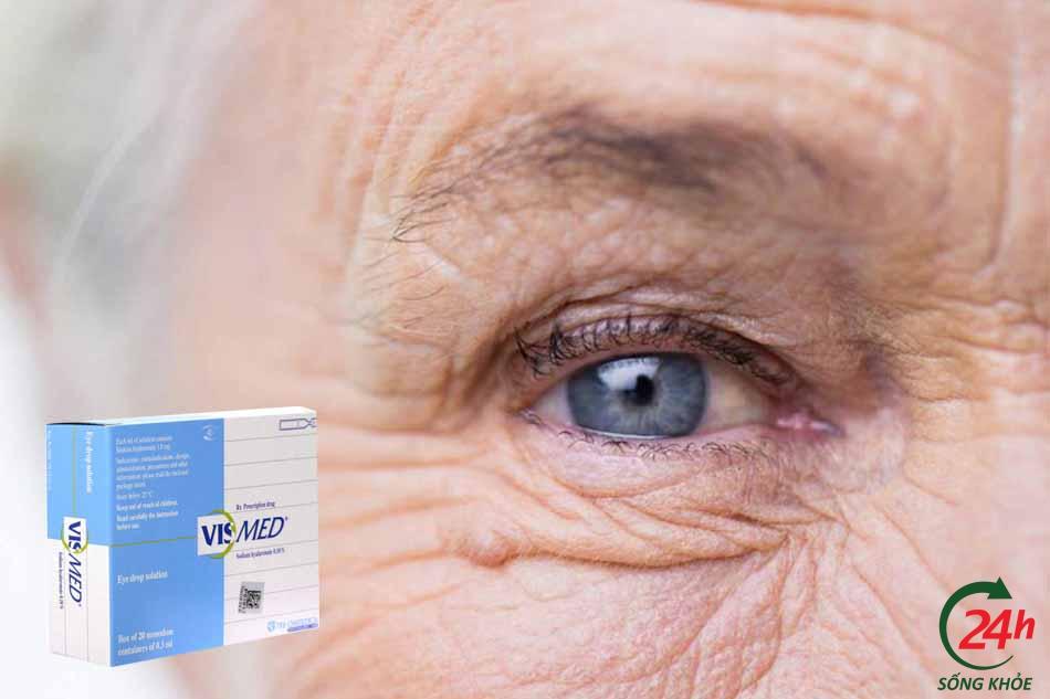 Công dụng và chỉ định thuốc nhỏ mắt Vismed