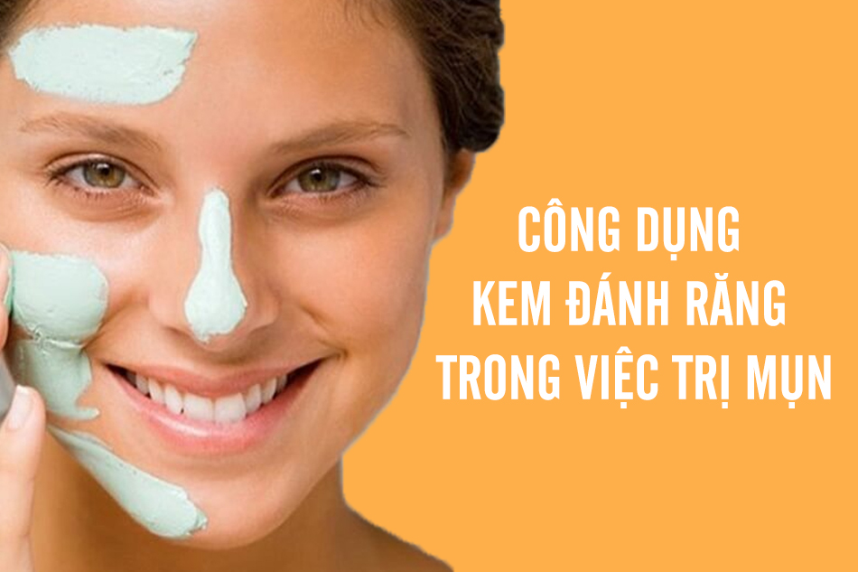 Công dụng của kem đánh răng trong trị mụn