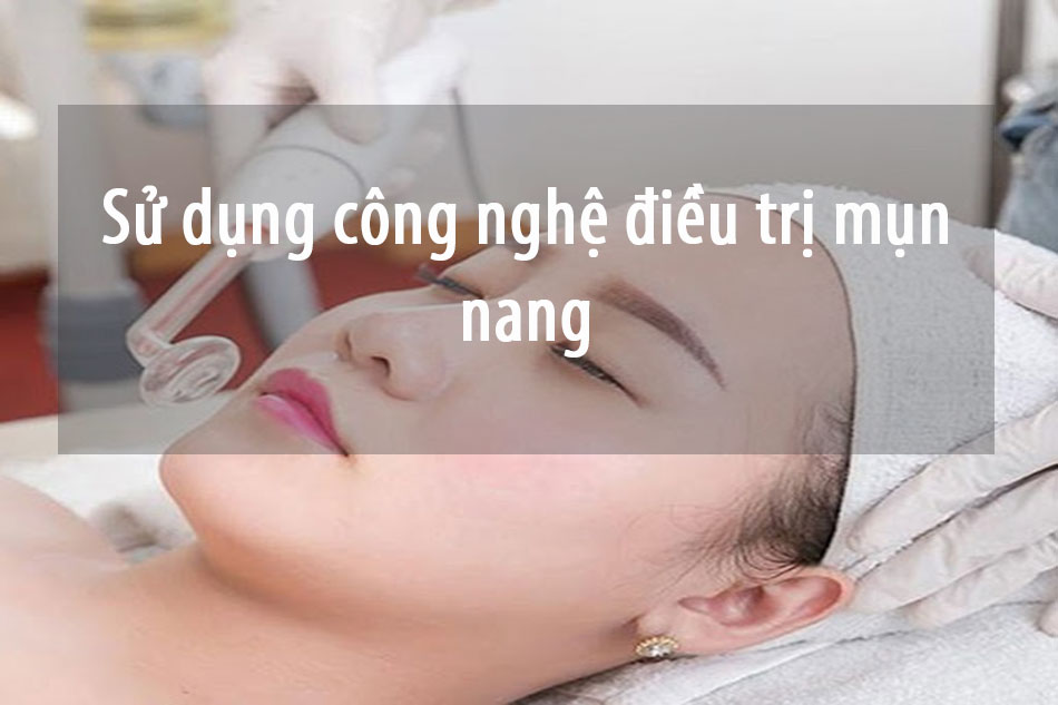 Sử dụng công nghệ điều trị mụn nang