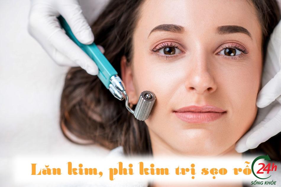 Điều trị sẹo rỗ - sẹo lõm bằng phương pháp lăn kim, phi kim