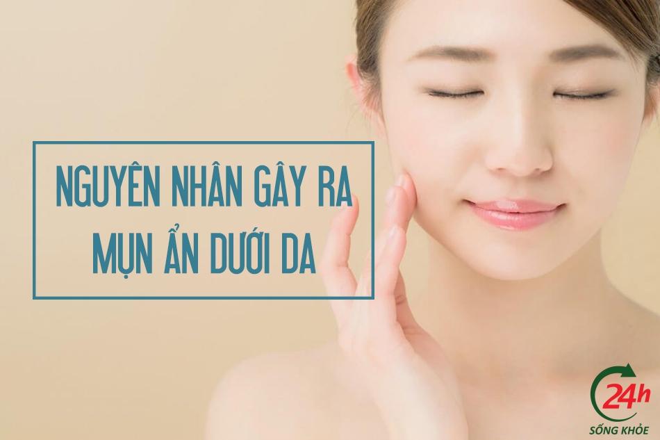 Nguyên nhân gây mụn ẩn dưới da
