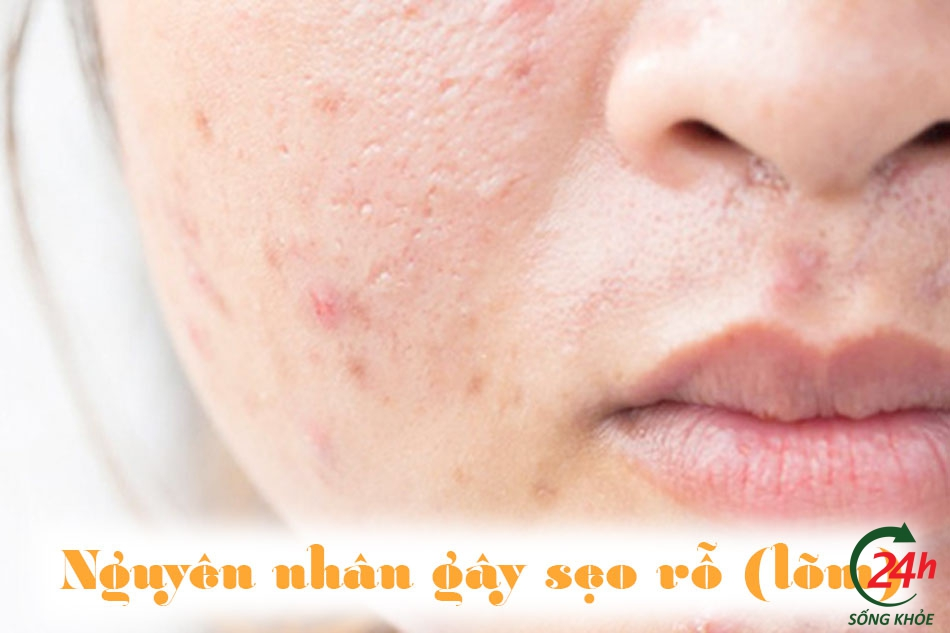 Nguyên nhân hình thành sẹo rỗ (lõm)