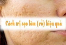 Điều trị sẹo rỗ - sẹo lõm