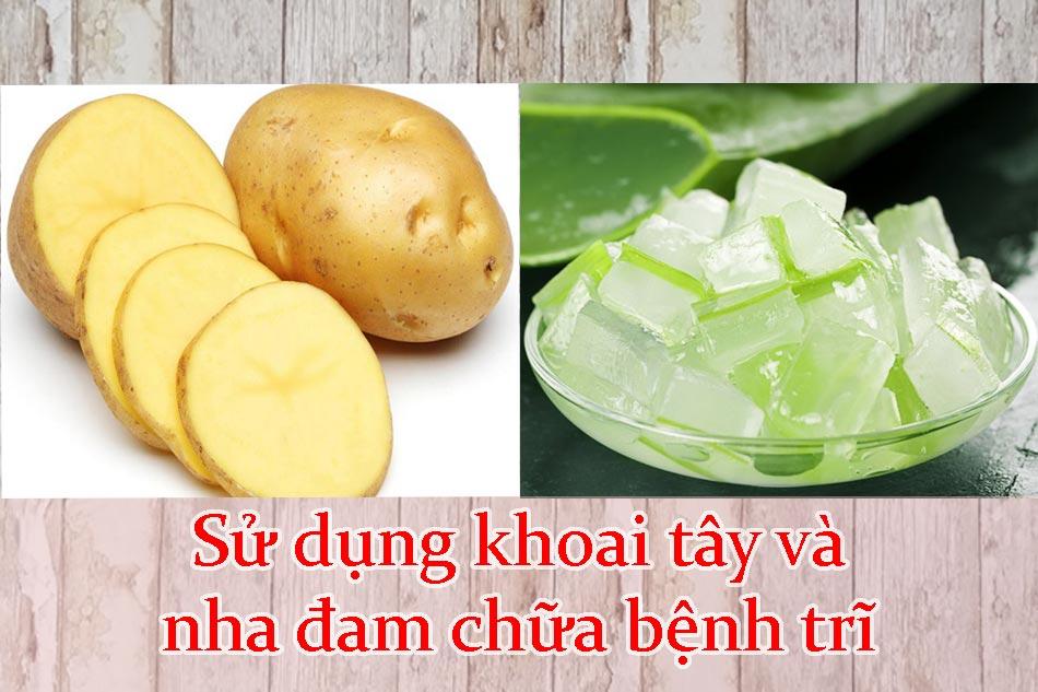 Sử dụng khoai tây và nha đam chữa bệnh trĩ