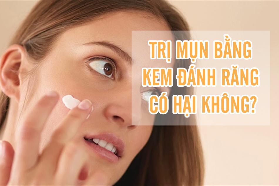 Trị mụn bằng kem đánh răng có hại không?