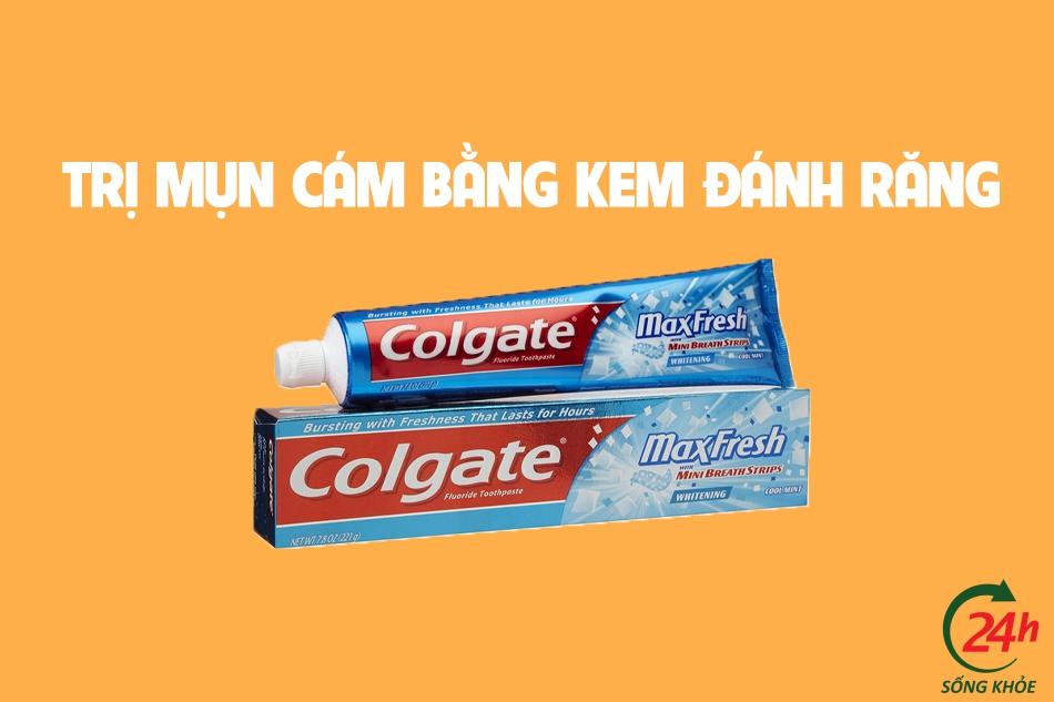 Kem đánh răng là sản phẩm rẻ tiền có thể trị đươc mụn cám