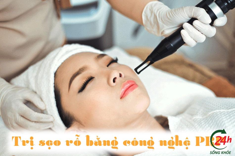 Điều trị sẹo rỗ (lõm) bằng công nghệ PRP
