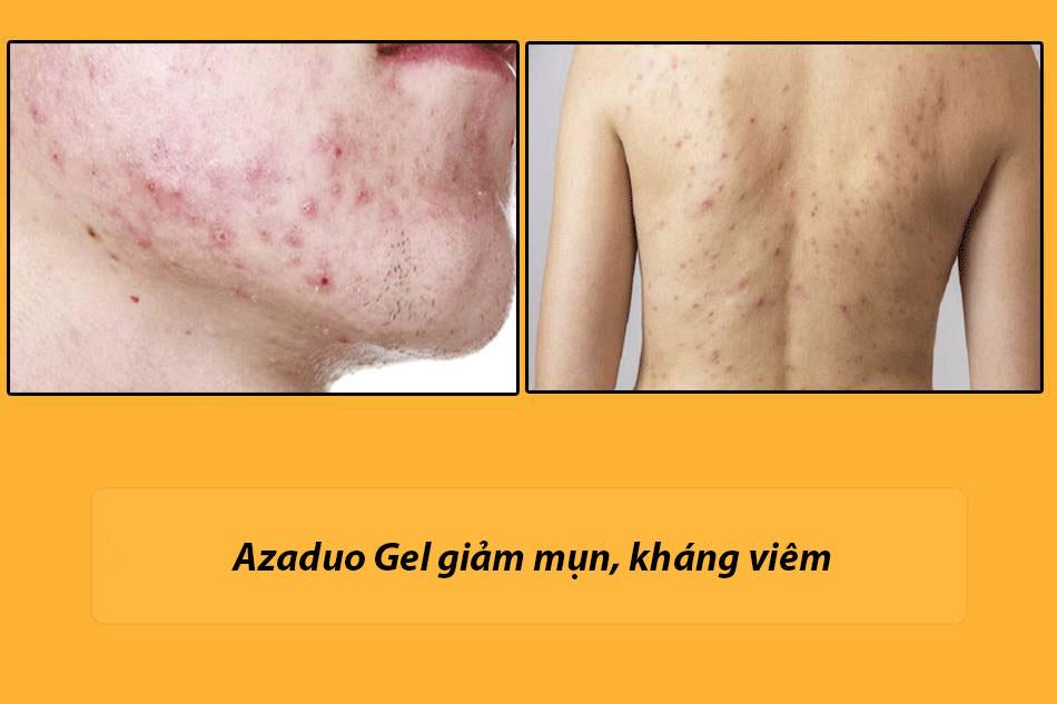 Công dụng của Azaduo Gel