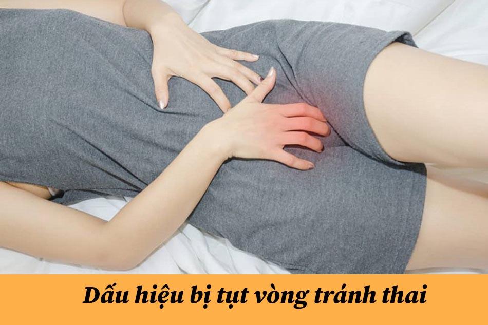 Dấu hiệu bị tụt vòng tránh thai