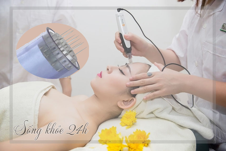 Lăn kim trị sẹo rỗ (sẹo lõm) thực chất là phương pháp sử dụng các đầu kim rất nhỏ tạo ra những tổn thương cho da