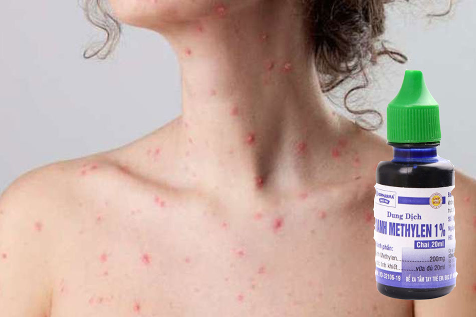 Xanh Methylen là một loại thuốc sát khuẩn và được chỉ định điều trị một số bệnh ngoài da phổ biến, trong đó có bệnh thủy đậu