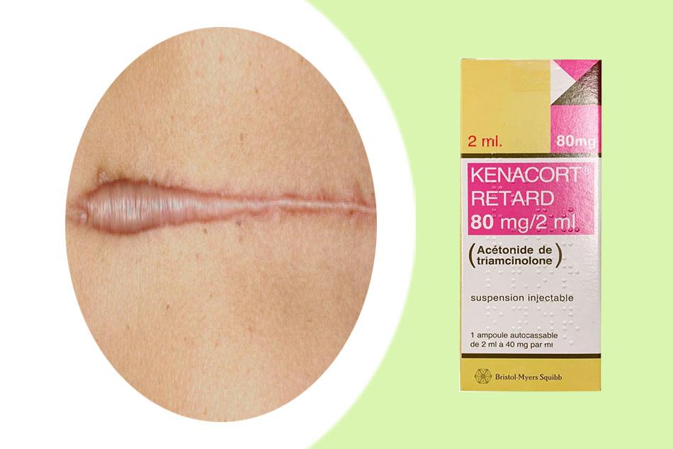 Tác dụng của thuốc Kenacort Retard 80mg/2ml