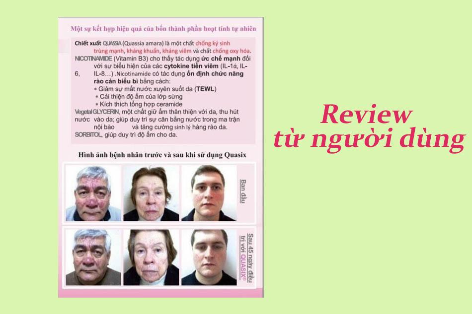 Review Quasix Cream Precio Peru từ người sử dụng