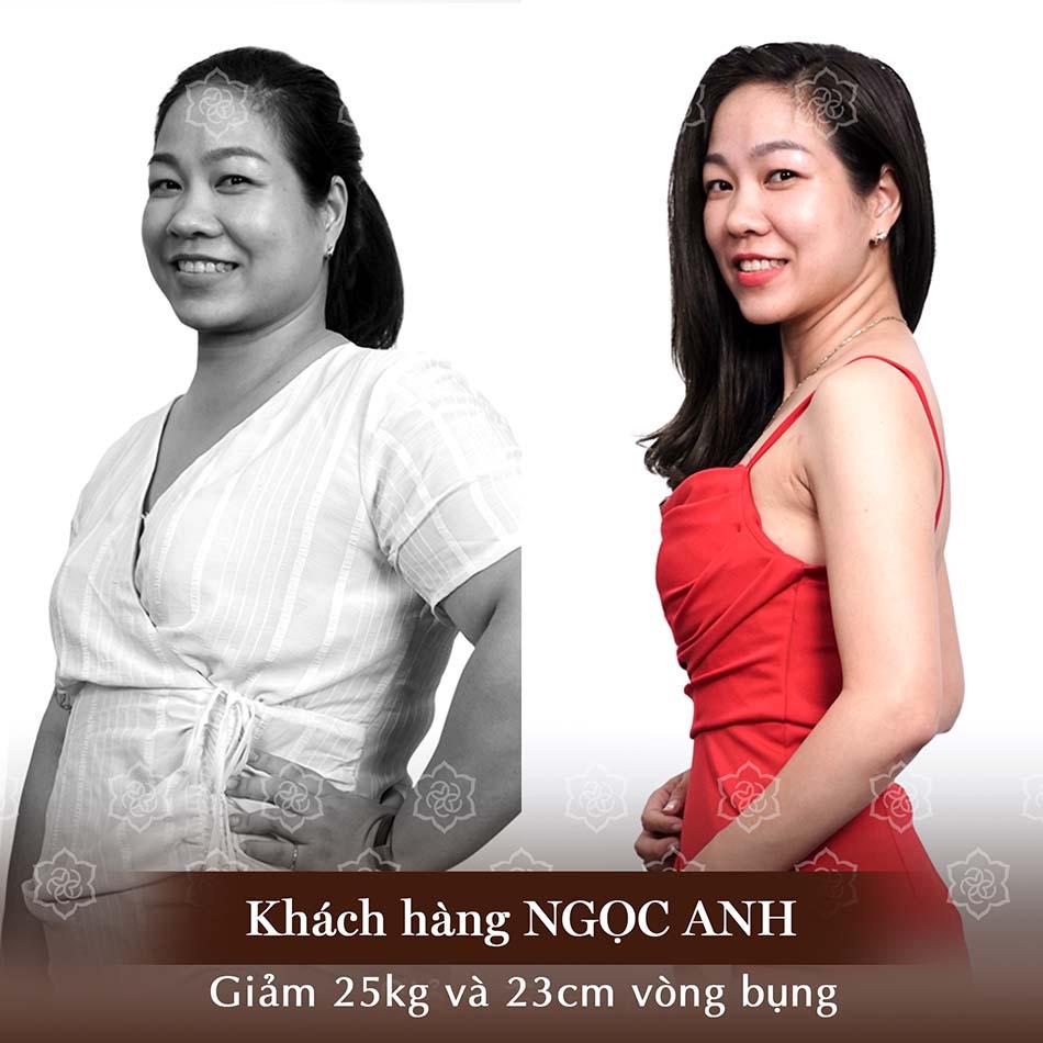 Hình ảnh trước và sau của Khách hàng sau khi sử dụng DV giảm béo LIPO DEEP